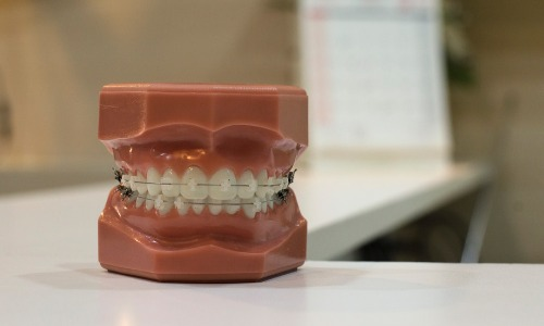 甘味料を使うと虫歯になる?